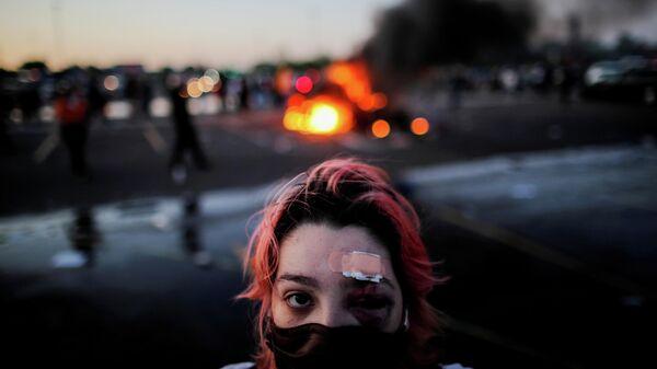 Девушка с травмами, полученными во время протестов в Миннеаполисе