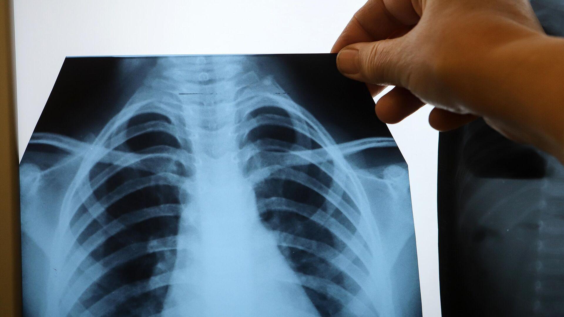 Врач с рентгеном легких в инфекционном корпусе - РИА Новости, 1920, 09.12.2020