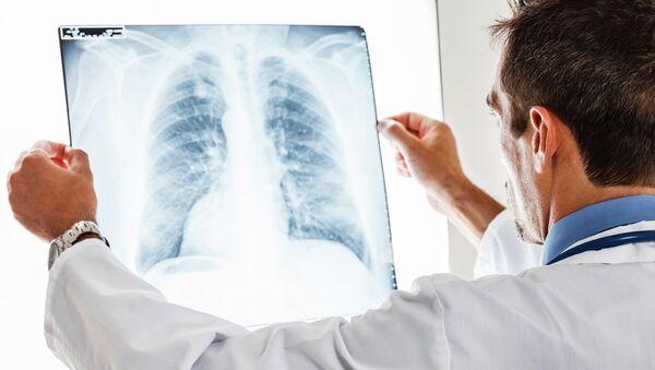 Врач анализирует рентген легких. Архивное фото