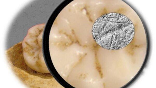 Зуб кроманьонца и царапины на его эмали