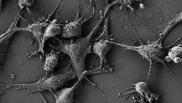 Клетки мышей, которых ученые защитили от радиации при помощи наночастиц