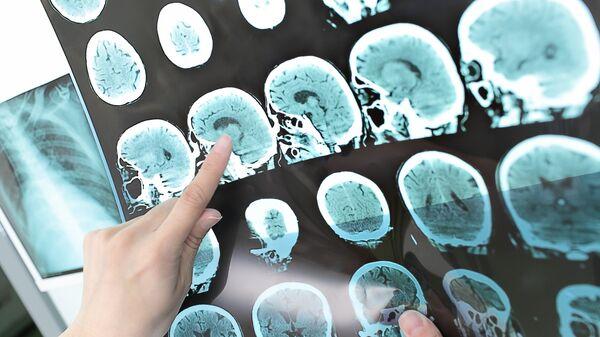 Результаты КТ головного мозга