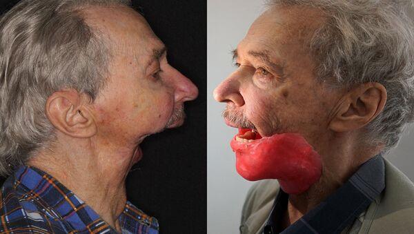 Игорь Бачелис до и после протезирования