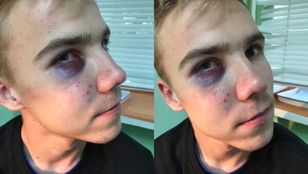 Владимир Сидоров после избиения