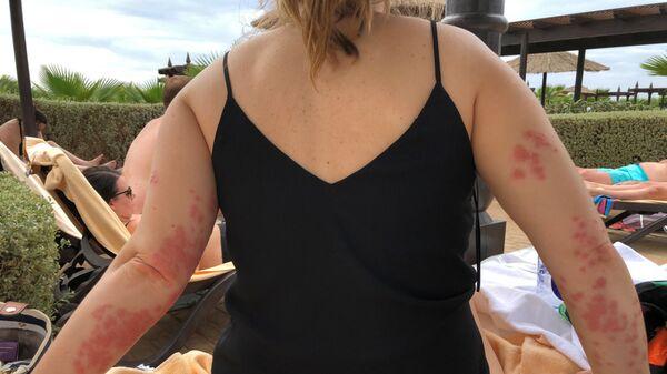Элейн Вишарт была покусана клопами во время отдыха