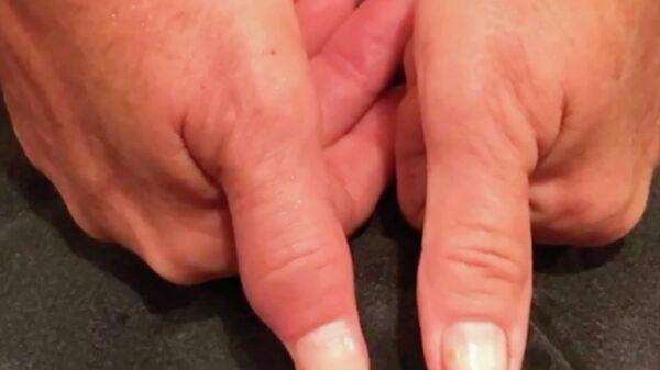 Скриншот видео про американку, которая заразилась инфекцией в маникюрном салоне