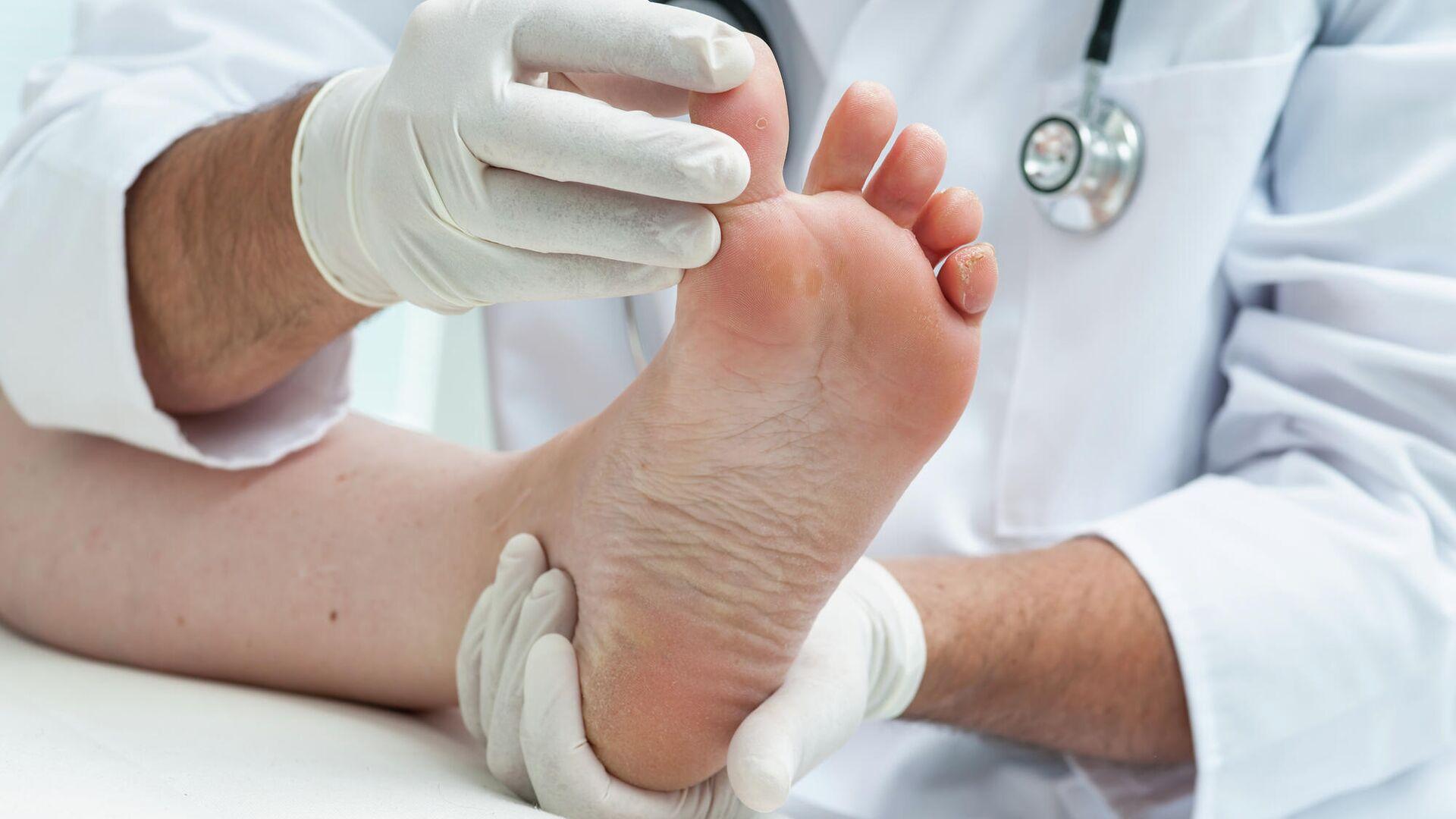 Daily Express: наросты на пальцах ног могут быть признаками высокого уровня холестерина в крови