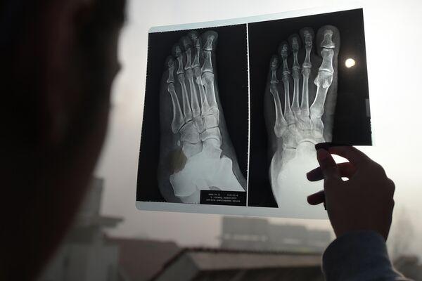 Девушка наблюдает солнечное затмение через рентгеновский снимок ноги в Пакистане. 26 декабря 2019 года