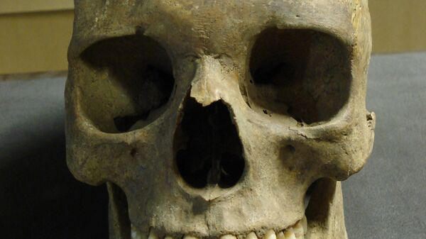 """Череп жертвы """"черной смерти"""", найденный Краузе и его коллегами на кладбище Ист Смитфилд"""