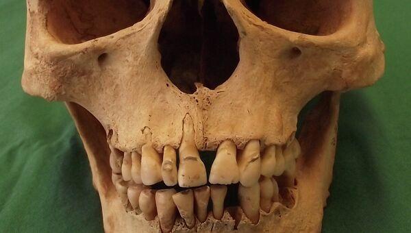 Череп жертвы проказы, погибшей от этой болезни во время Средневековья в Англии